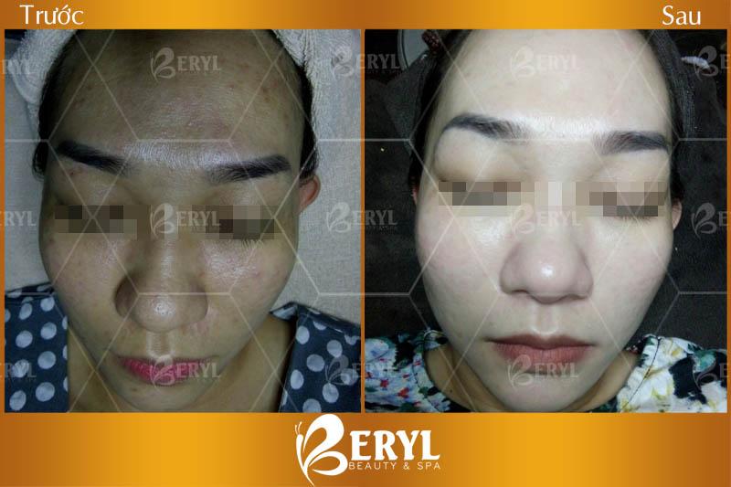 Hình ảnh trước và sau khách hàng chăm sóc da mặt chuyên sâu tại Beryl Beauty & Spa