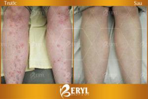 Hình ảnh trước và sau khi trị sẹo thâm chân tại Beryl Beauty & Spa