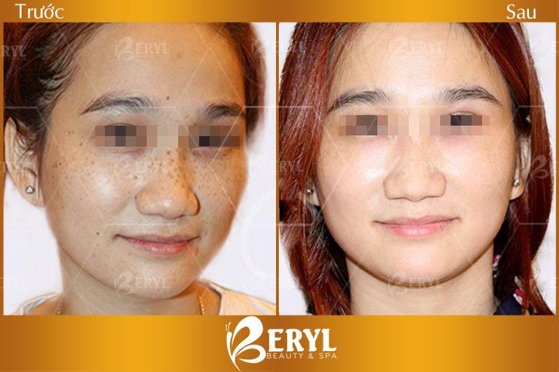 Trước và sau khi điều trị tại Beryl Beauty