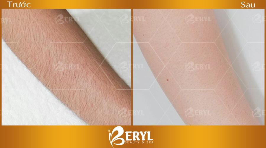 Hình ảnh trước và sau khi tẩy lông tay tại Beryl Beauty & Spa