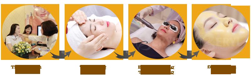 Quy trình điều trị tàn nhang bằng Laser Yag