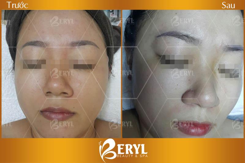 Hiệu quả khi làm trắng da mặt bằng Công Nghệ Magic Skin