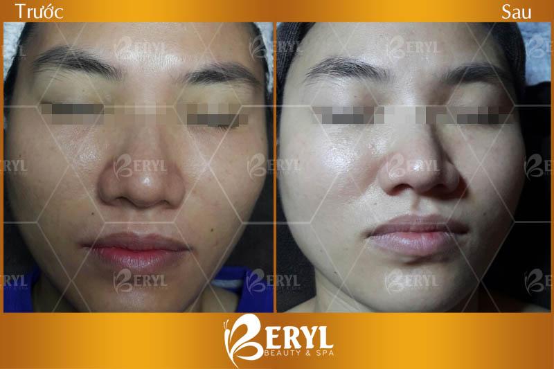 Trước và sau khi làm trắng da mặt tại Beryl Beauty