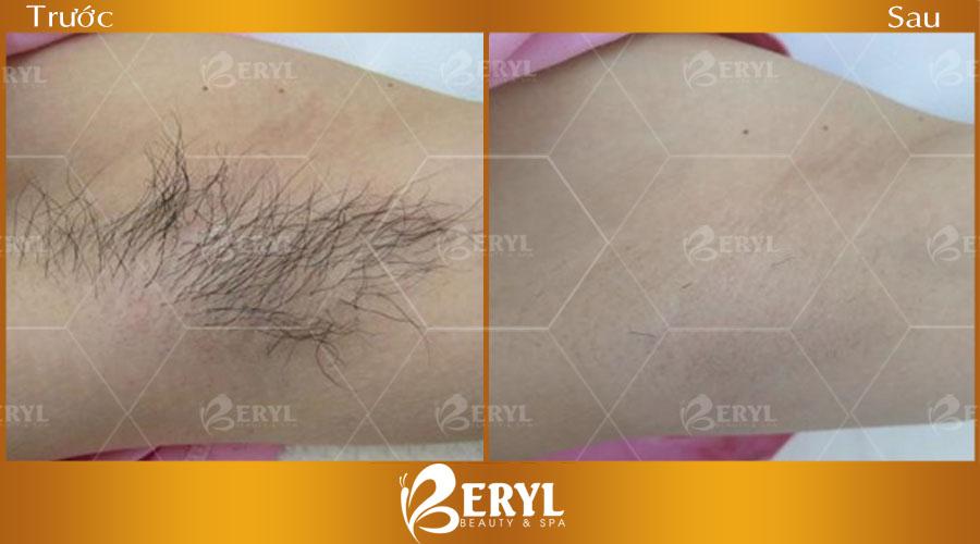 Hình ảnh trước và sau khi tẩy lông nách tại Beryl Beauty & Spa