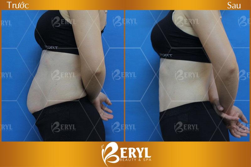 Hình ảnh trước và sau giảm mỡ bụng tại Beryl Beauty