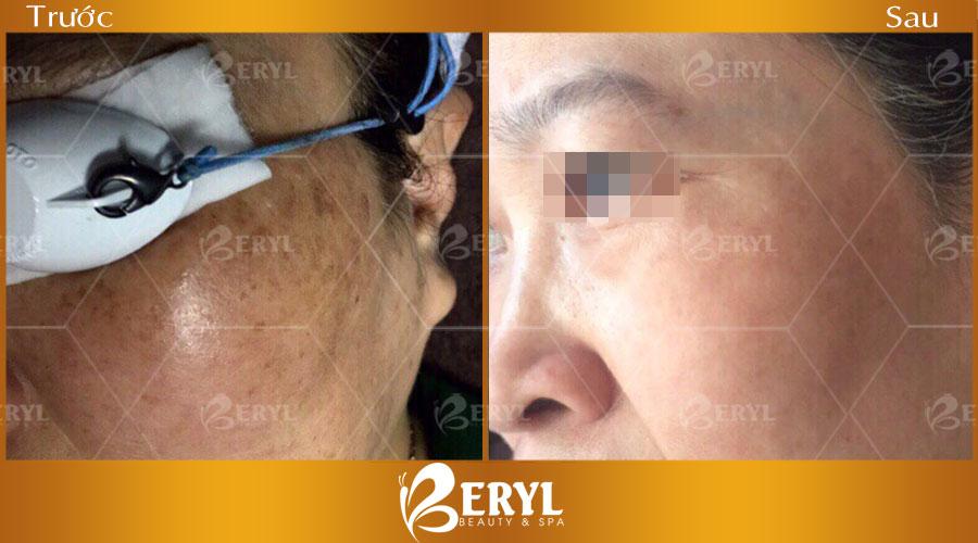 Hình ảnh khách hàng điều trị nám tại Beryl Beauty & Spa
