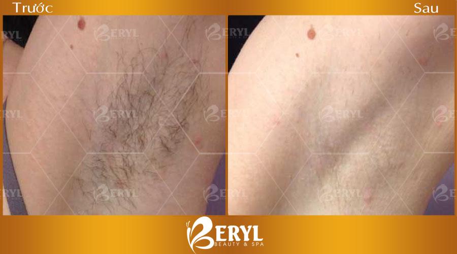Hình ảnh trước và sau khách hàng triệt lông tại Beryl Beauty