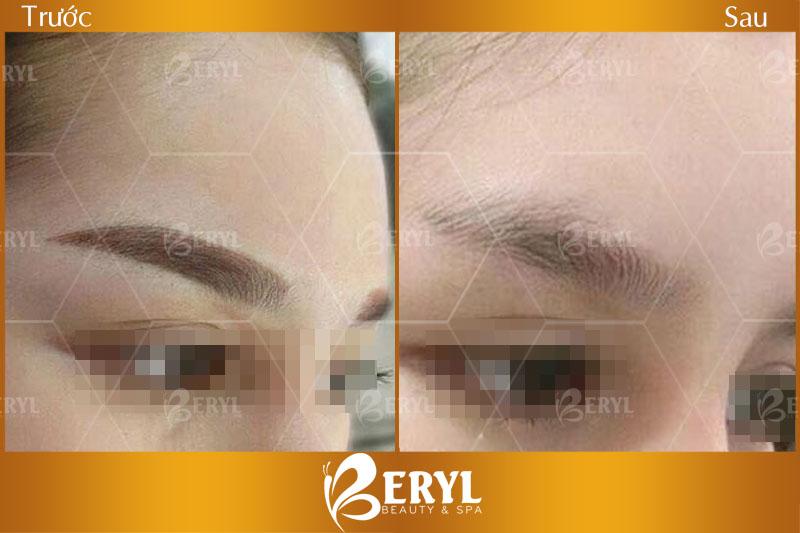 Trước và sau khi xóa xăm lông mày bằng công nghệ Alphatech 2019 tại Beryl Beauty & Spa