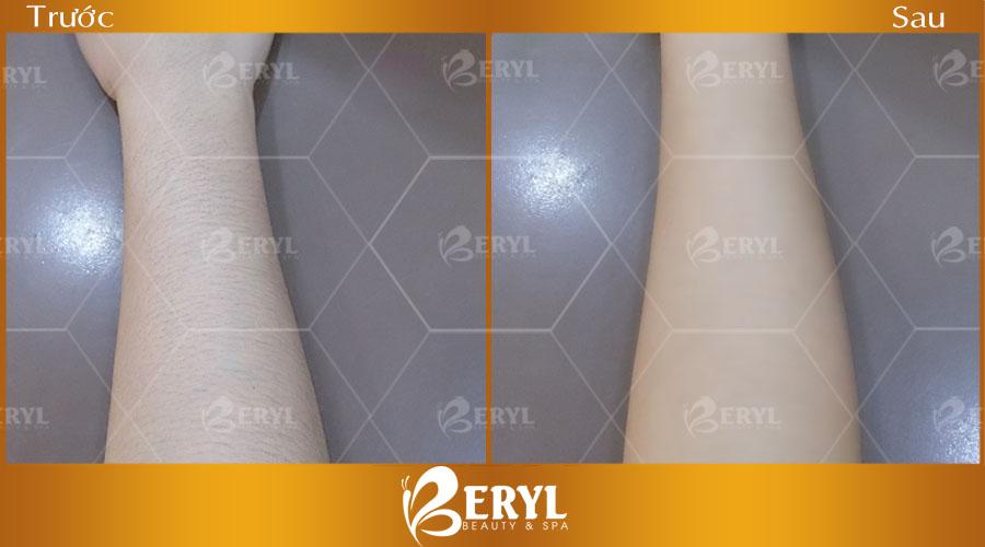 Hình trước và sau khi triệt lông vĩnh viễn tại Beryl Beauty & Spa