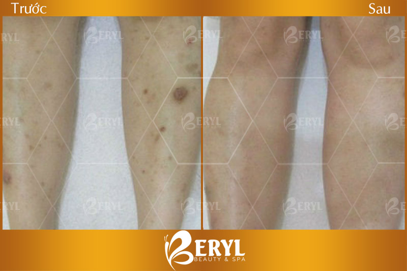 Trước và sau khi khách hàng trị thâm ở chân tại Beryl Beauty & Spa