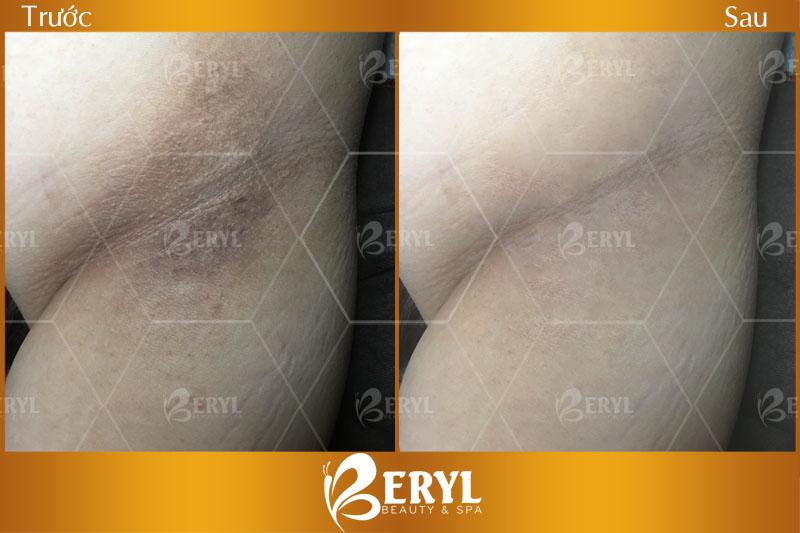 Chi phí điều trị thâm nách bằng công nghệ Peeling tại Beryl Beauty