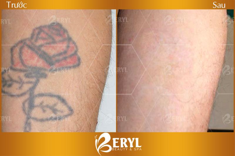 Trước và sau khi xóa xăm bằng Laser tại Beryl Beauty